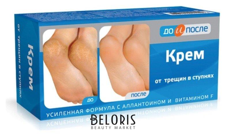 Крем для ног Твинс-ТэкКрем для ног<br>Крем для ног от трещин в ступнях - эффективное средство для быстрого заживления глубоких трещин и потертостей на ступнях и пятках ног. Активный растительный комплекс в сочетании с аллантоином и витамином F стимулирует регенерацию клеток кожи, способствует заживлению трещин и предотвращает образование натоптышей. Кожа становится мягкой и эластичной. Крем предназначен для активного ухода за кожей ног и ступней.<br>Пол: Женский; Линейка: До и после; Объем мл: 50;
